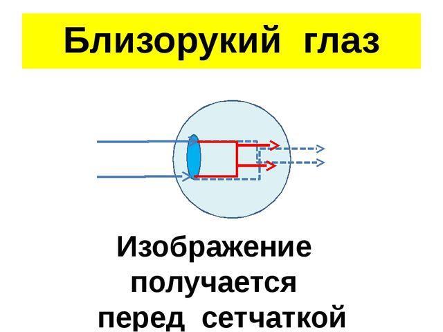 Близорукий глаз Изображение получается перед сетчаткой