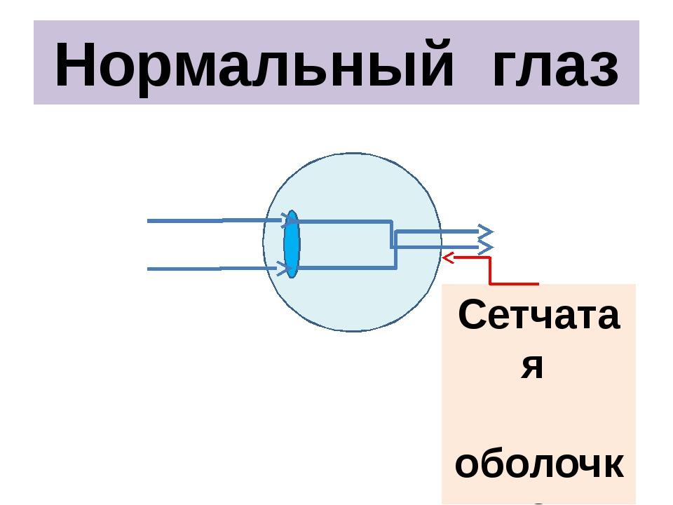 Нормальный глаз Сетчатая оболочка