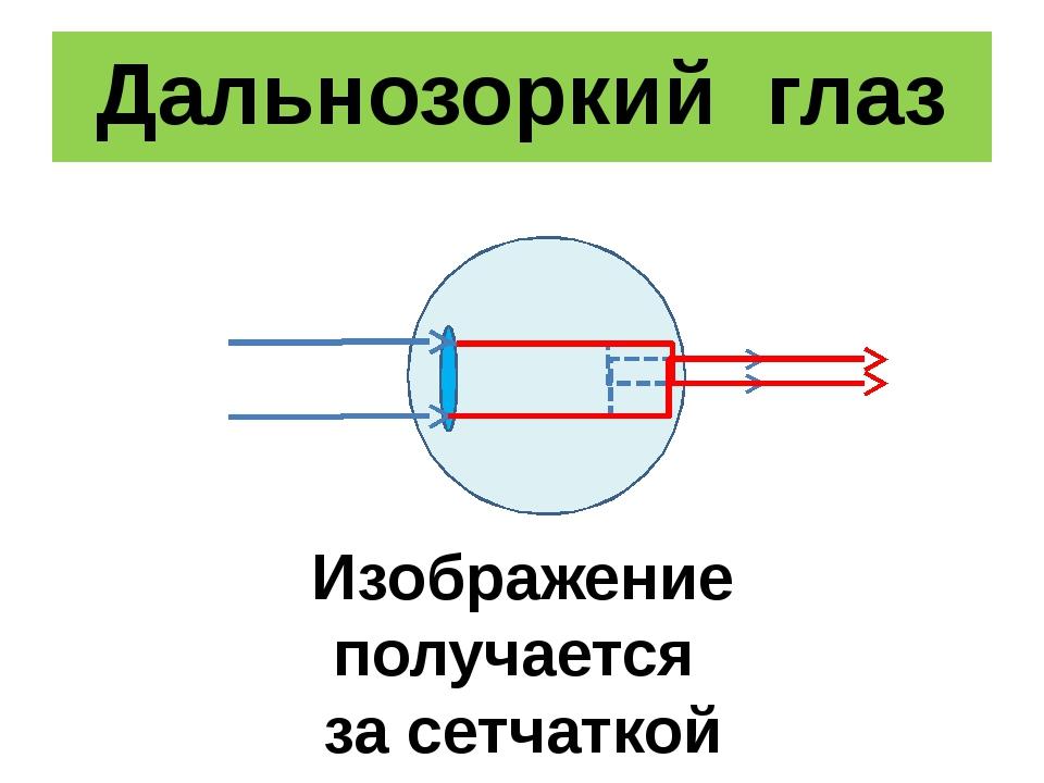 Дальнозоркий глаз Изображение получается за сетчаткой