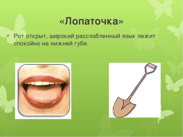 «Лопаточка» Рот открыт, широкий расслабленный язык лежит спокойно на нижней г...