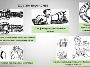 Другие переломы Такой валик используется при травмах головы Так фиксируются с