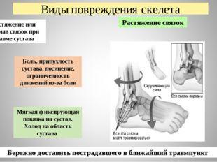 Виды повреждения скелета Растяжение связок Боль, припухлость сустава, посинен