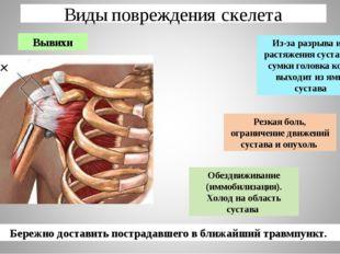 Виды повреждения скелета Вывихи Из-за разрыва или растяжения суставной сумки