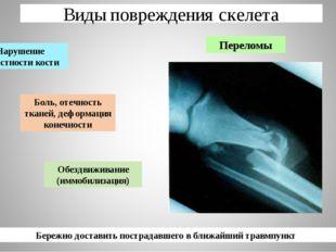 Виды повреждения скелета Переломы Боль, отечность тканей, деформация конечнос