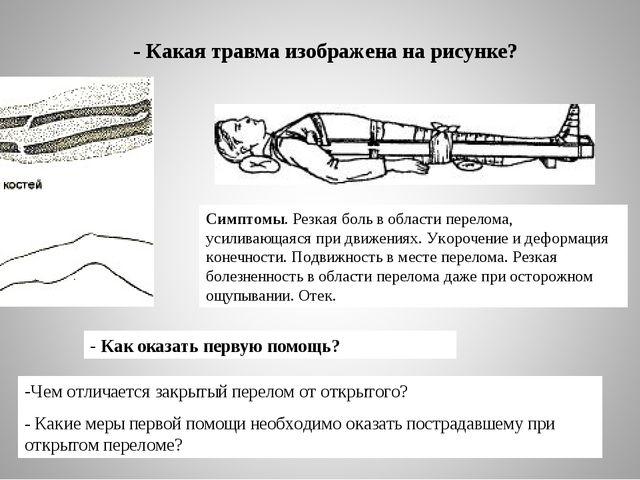 - Какая травма изображена на рисунке? Чем отличается закрытый перелом от отк...