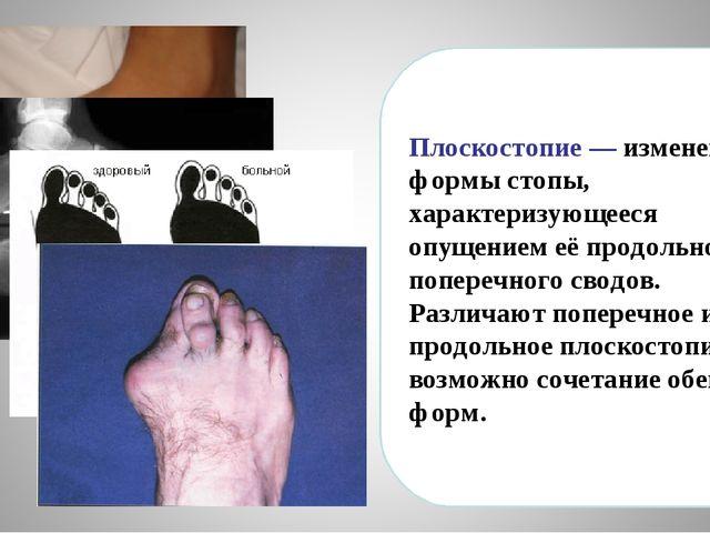 Плоскостопие— изменение формы стопы, характеризующееся опущением её продольн...