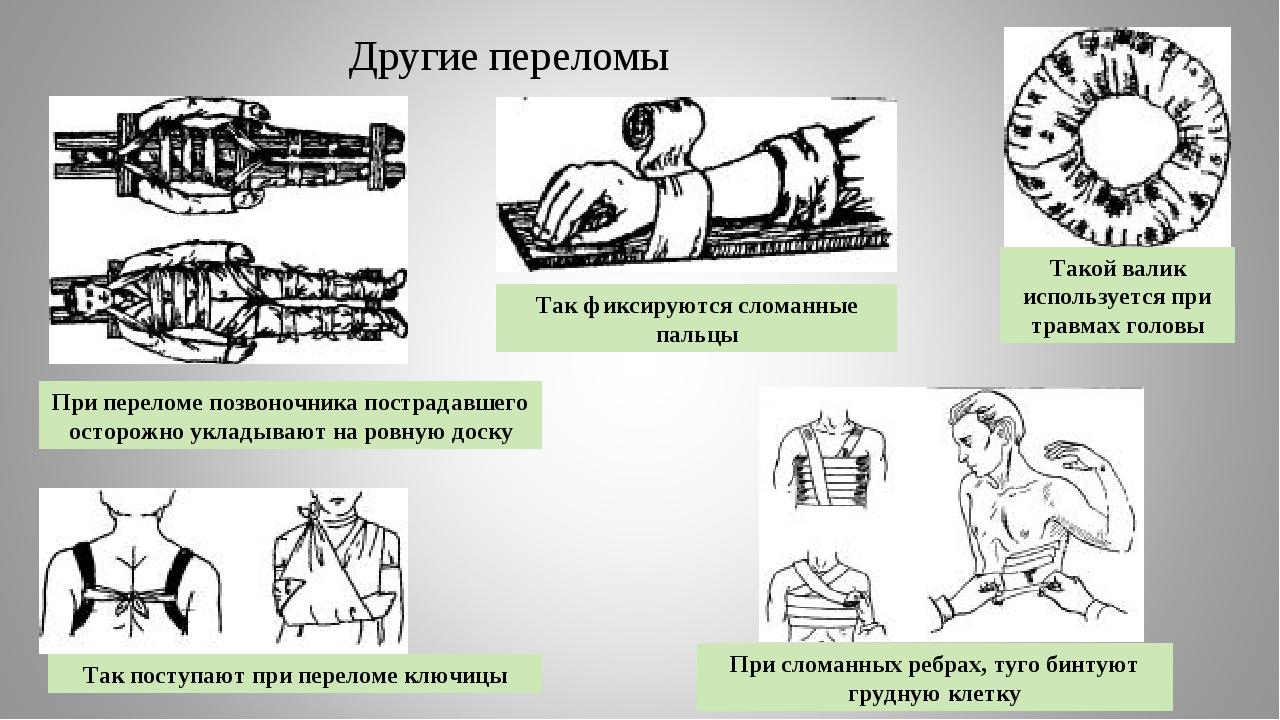 Другие переломы Такой валик используется при травмах головы Так фиксируются с...