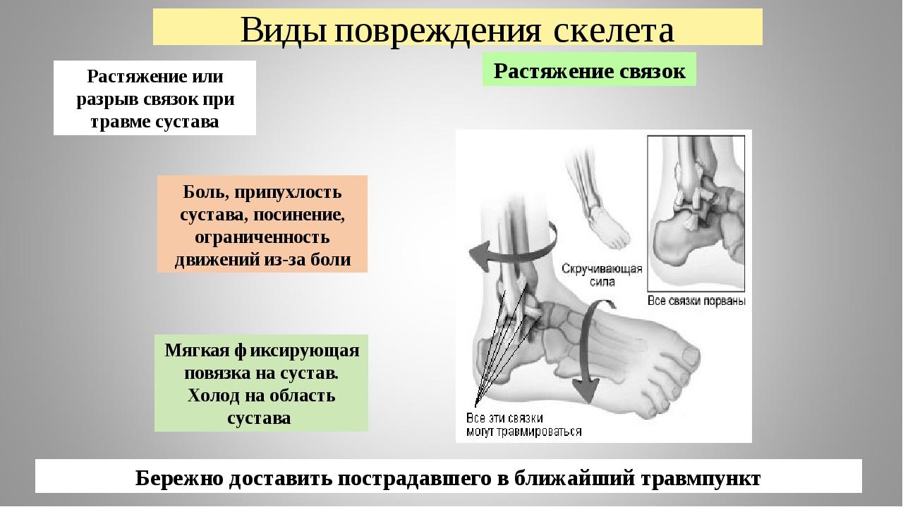 Виды повреждения скелета Растяжение связок Боль, припухлость сустава, посинен...