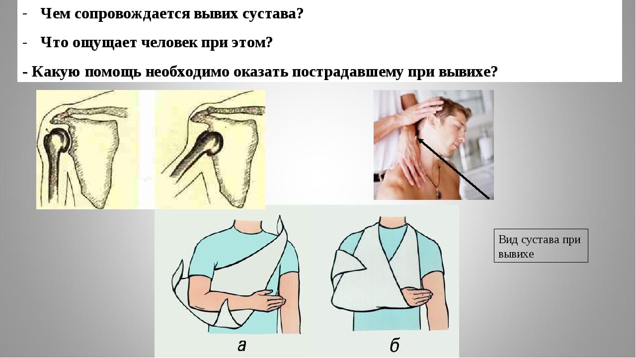 Чем сопровождается вывих сустава? Что ощущает человек при этом? - Какую помощ...