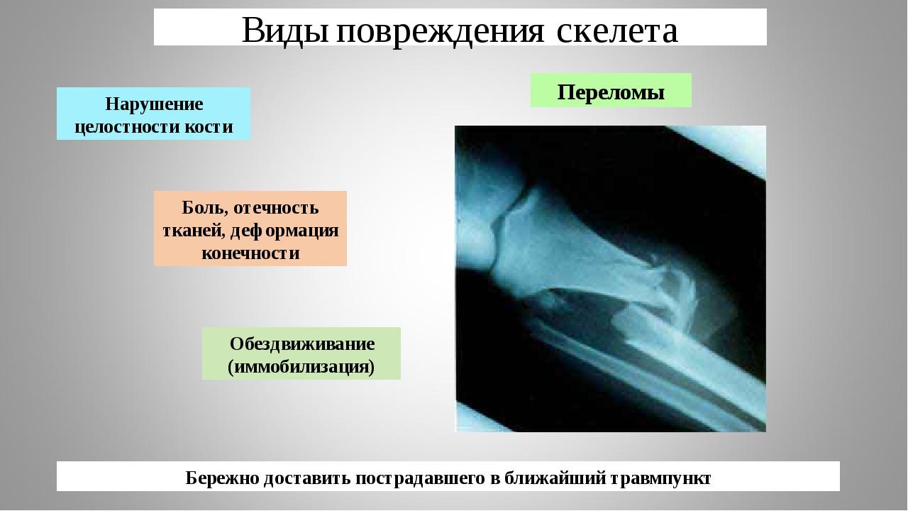Виды повреждения скелета Переломы Боль, отечность тканей, деформация конечнос...