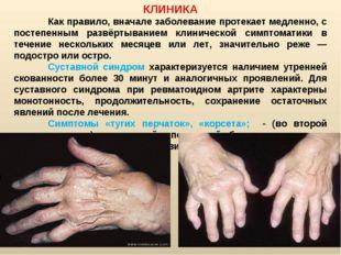 КЛИНИКА Как правило, вначале заболевание протекает медленно, с постепенным р