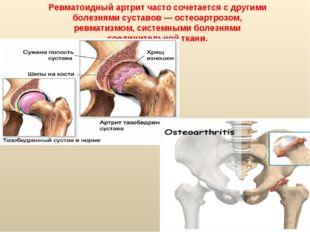 Ревматоидный артрит часто сочетается с другими болезнями суставов — остеоартр