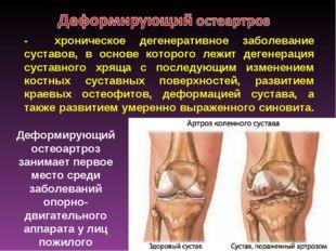 - хроническое дегенеративное заболевание суставов, в основе которого лежит де