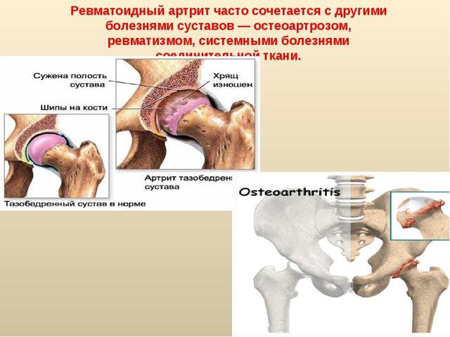 Ревматоидный артрит часто сочетается с другими болезнями суставов — остеоартр...