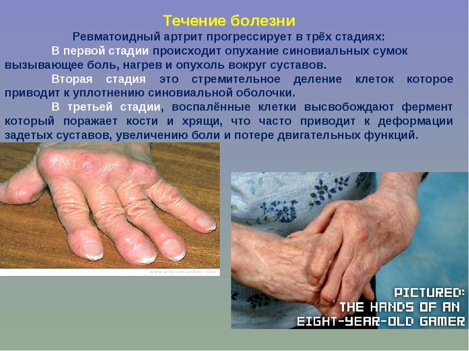 Течение болезни Ревматоидный артрит прогрессирует в трёх стадиях: В первой с...