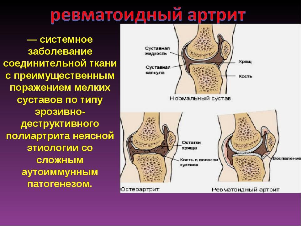 — системное заболевание соединительной ткани с преимущественным поражением ме...