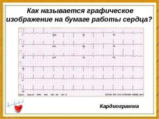 Как называется графическое изображение на бумаге работысердца? Кардиограмма