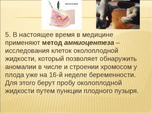 5. В настоящее время в медицине применяют метод амниоцентеза – исследования к