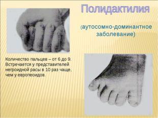 (аутосомно-доминантное заболевание) Количество пальцев – от 6 до 9. Встречае