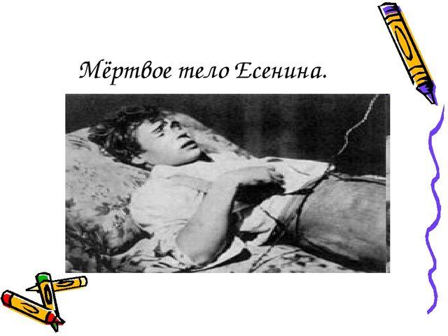 Мёртвое тело Есенина.