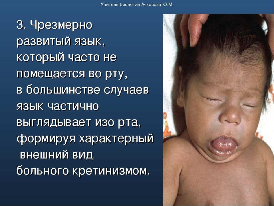 3. Чрезмерно развитый язык, который часто не помещается во рту, в большинстве...