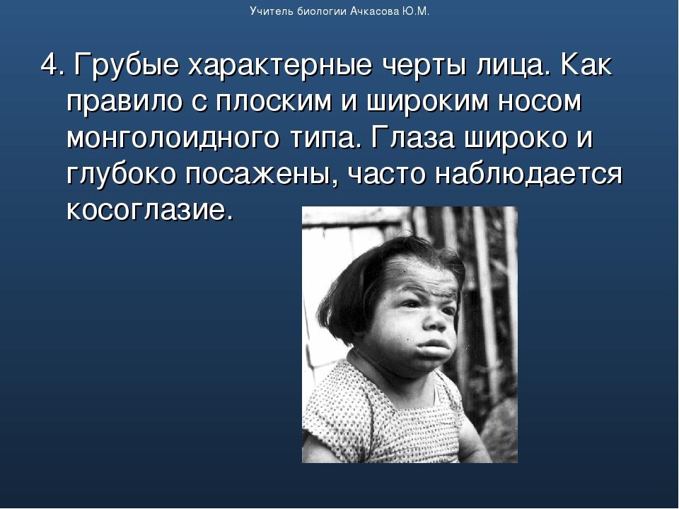 4. Грубые характерные черты лица. Как правило с плоским и широким носом монго...